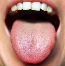 Tongue Health - John Street Dental Redcliffe