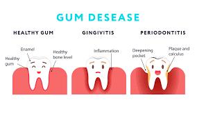 gum disease explanation
