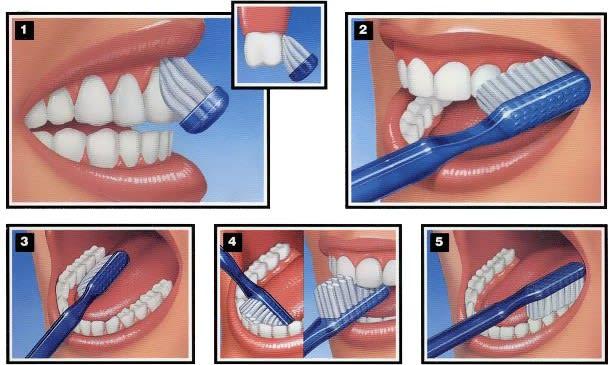 tooth brushing 1