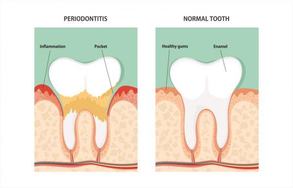 depositphotos_95710270-stock-illustration-tooth-periodontal-disease